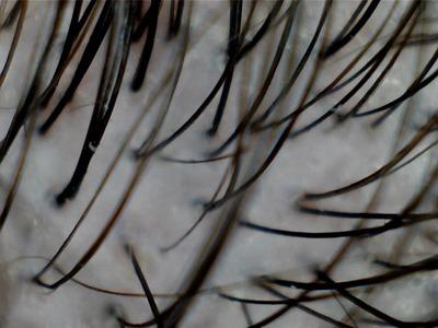 cabelo-microscopio-2